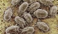 Eradicate  Lice